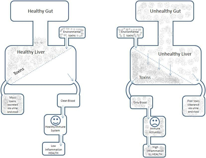 good gut health vs poor gut health diagrams