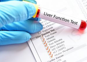 liver detox test | liver function test | Perpetual Wellbeing